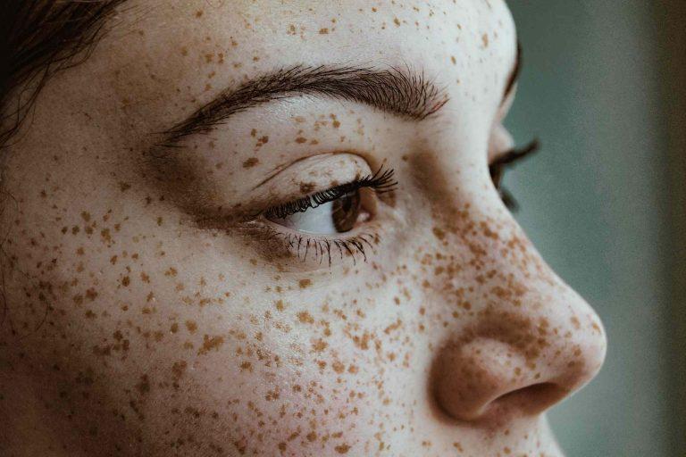 Solar Lentigines Skin Pigmentation