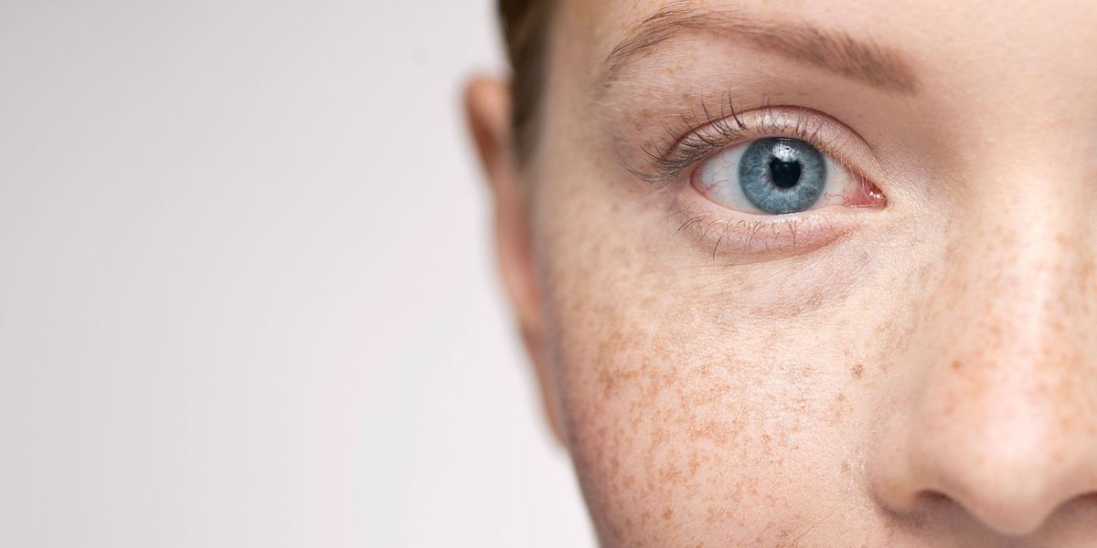 Freckles Skin Pigmentation