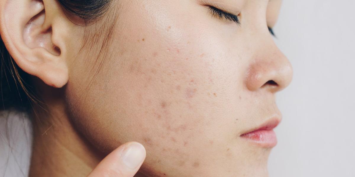 Post-Inflammatory Hyperpigmentation (PIH)